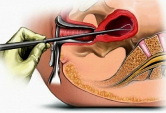 Гистология матки: как проводится и что помогает диагностировать?