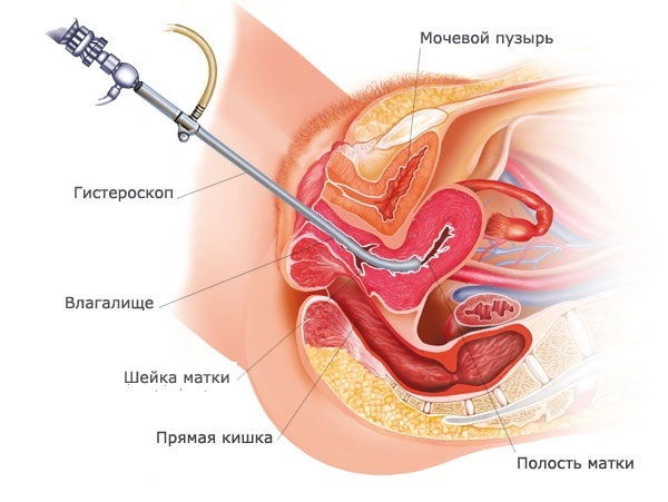 Однорогая матка и беременность: осложнения при вынашивании