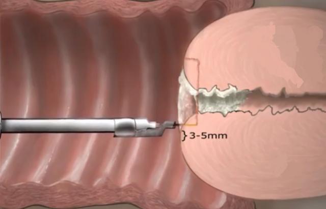 Круговая биопсия шейки матки: особенности проведения процедуры