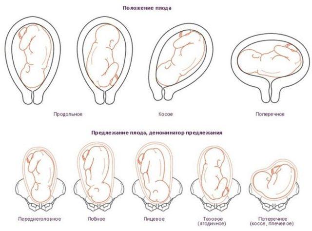Положение плода в матке: отличия зависимы от срока беременности
