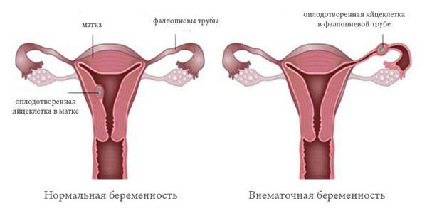 Болит левый бок при беременности: причины, симптомы, последствия