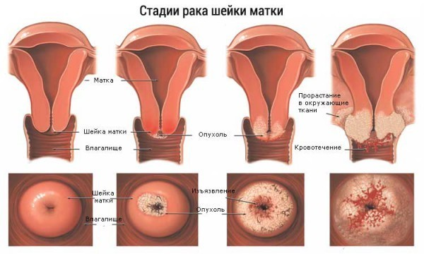Рак шейки матки: последствия и осложнения для организма женщины