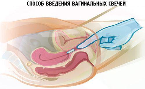 Свечи от воспаления шейки матки: разновидности и сфера действия