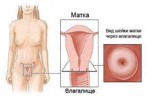 Как лечить кисту шейки матки: все возможные способы