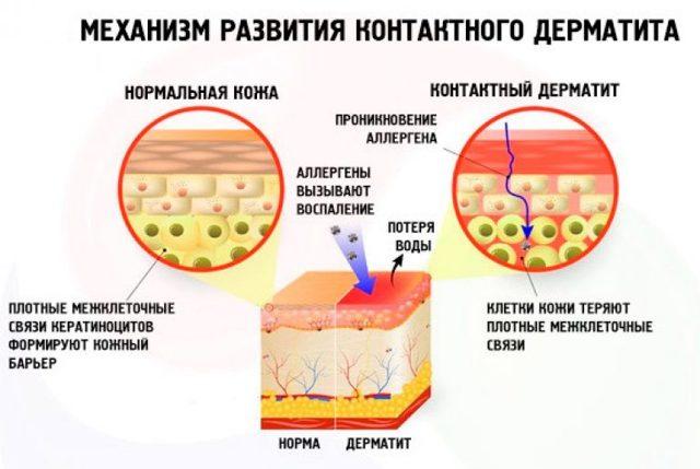Зуд при беременности: причины, лечение, вред для ребенка