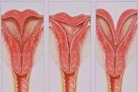 Атрезия цервикального канала в постменопаузе: причины и лечение