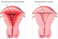 Выскабливание при гиперплазии эндометрия: особенности метода
