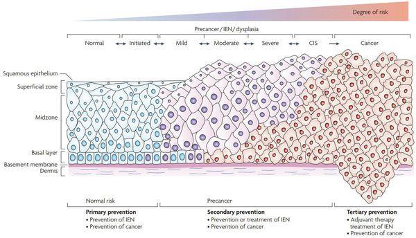 Диагностика дисплазии шейки матки: описание методов