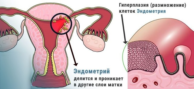 Месячные при гиперплазии эндометрия: характеристика выделений