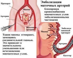 Размеры миомы матки по неделям и в сантиметрах: когда показана операция