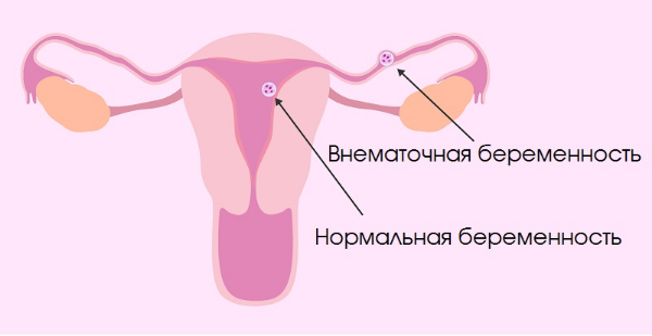 Увеличивается ли матка при внематочной беременности или нет?
