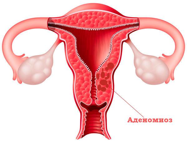 Эндометриоз и гиперплазия эндометрия в чем разница