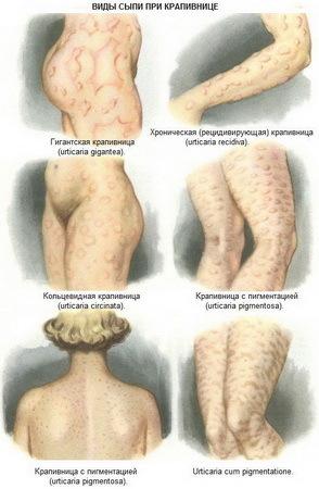 Крапивница при беременности: что такое, причины, симптомы, диагностика, лечение, профилактика