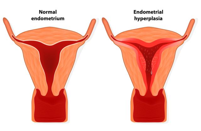Рецидивирующая гиперплазия эндометрия: в каких случаях возможна?