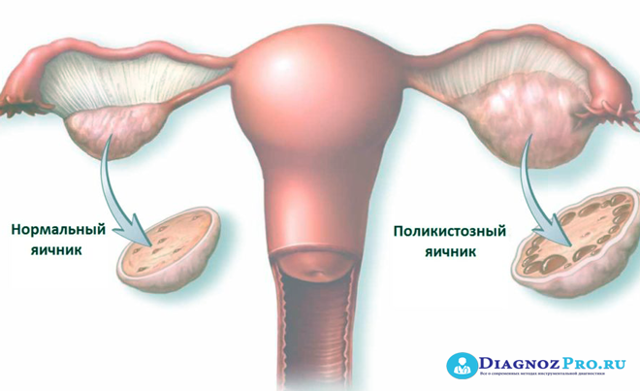 Беременность после лапароскопии: когда можно беременеть, менструальный цикл после операции, подготовка и течение гестации
