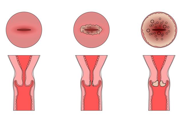 Анализы при эрозии шейки матки: какие нужны перед лечением?