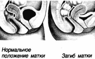 Загиб матки кзади (ретрофлексия): причины и лечение