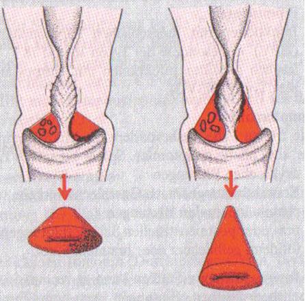 Беременность после конизации шейки матки:особенности,последствия