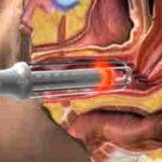 Лейкоплакия и эрозия шейки матки: различия, диагностика и методы лечения болезней