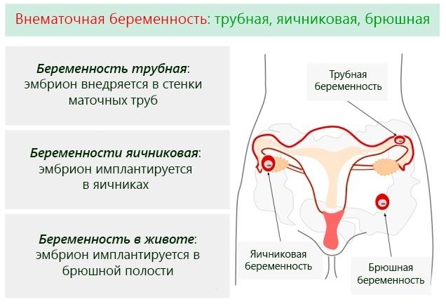 Что такое внематочная беременность в яичнике, чем она опасна для здоровья?