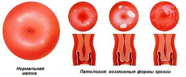 Криодеструкция шейки матки: преимущества процедуры