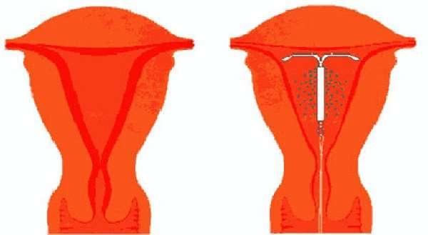 Спираль при загибе матки, виды внутриматочных спиралей, плюсы и минусы спиралей