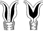 Шаровидная матка, особенности строения органа, опасность патологии и возможные осложнения