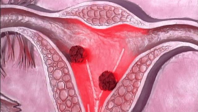 Низкодифференцированная аденокарцинома матки: особенности