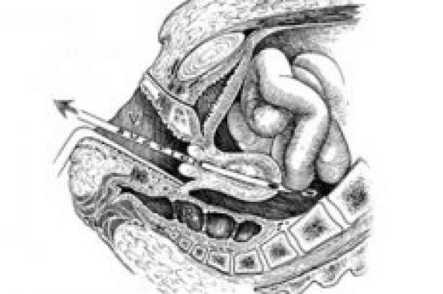 Чистка матки после родов: показания и проведение процедуры