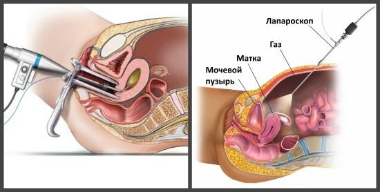 Эндоскопия матки: разновидности и особенности проведения