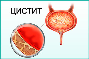 Цистит при беременности: причины, симптомы, формы патологии, лечение и профилактика, возможные осложнения