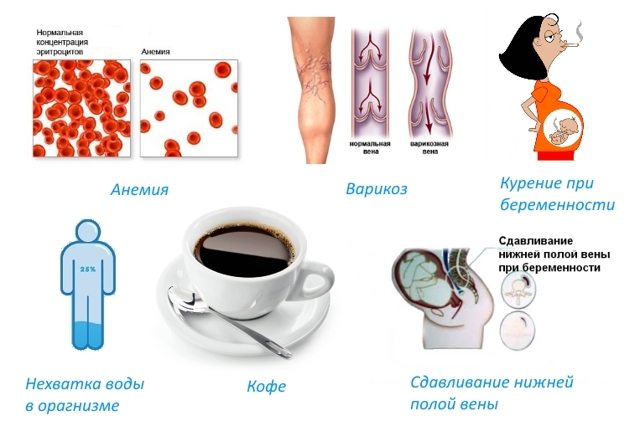 Судороги в ногах при беременности: причины и лечение