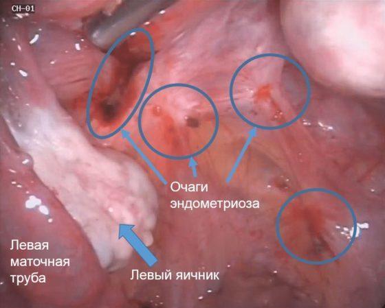 Актовегин для эндометрия: показан при женском бесплодии