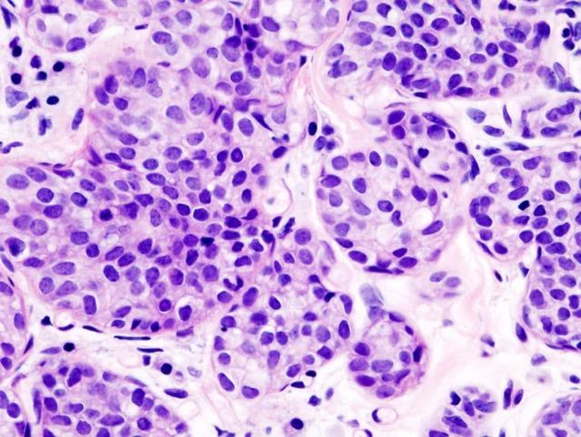 Рак шейки матки 4 стадия: продолжительность жизни, методы терапии