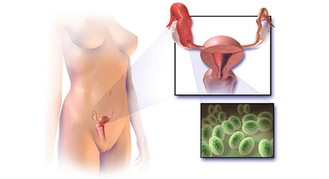 Хронический сальпингит: причины и особенности развития состояния