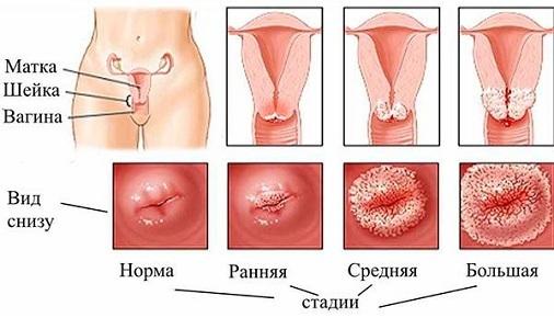 Свечи после прижигания эрозии шейки матки: показания и рекомендуемые препараты