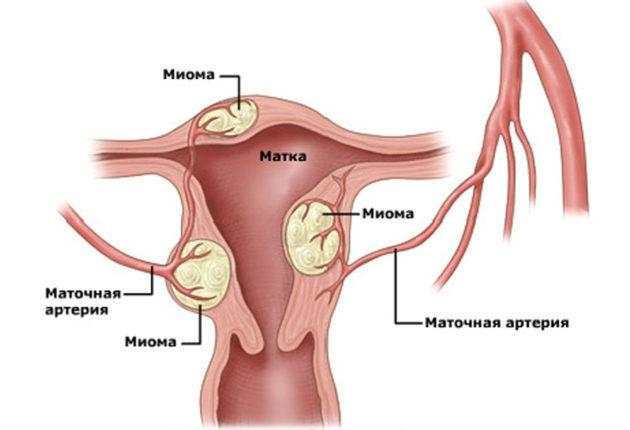 Месячные после удаления миомы матки: когда начинаются, как протекают?