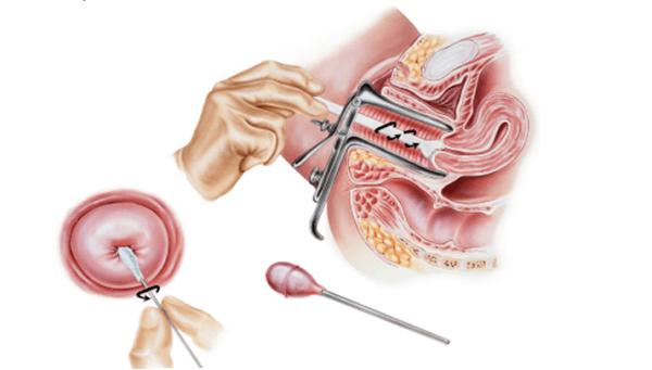 Онкоцитология шейки матки: что показывает анализ?