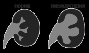 Пиелоэктазия при беременности: что это, причины, диагностика, лечение, осложнения