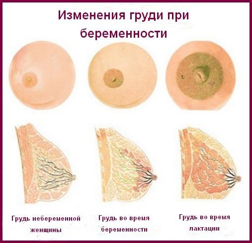 Грудь на ранних сроках беременности: изменения