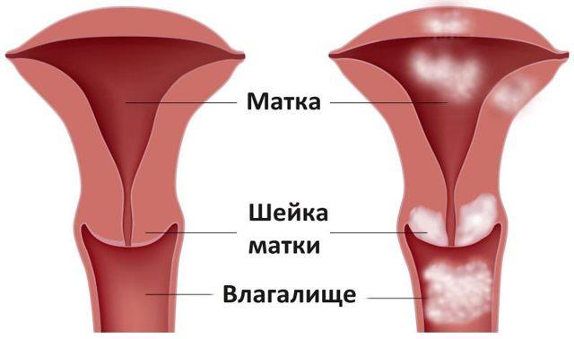 Как быстро развивается рак шейки матки на различных стадиях