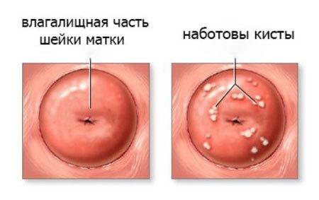 Наботовы кисты на шейке матки: определение и симптомы, лечение