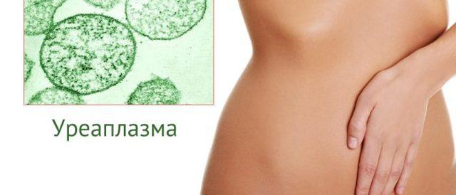 Уреаплазма при беременности: симптомы, пути передачи, методы диагностики, опасность, лечение и профилактика