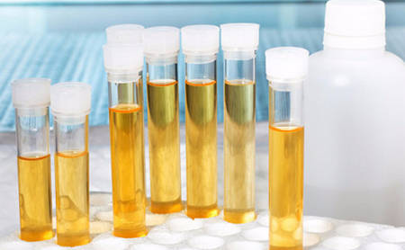 Лейкоциты в моче при беременности: норма, отклонения, повышение, лечение, профилактика
