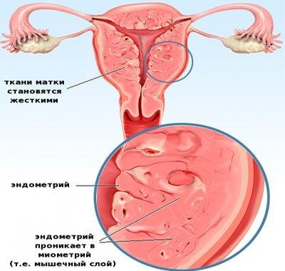 Возможна ли гиперплазия при такой толщине эндометрия?