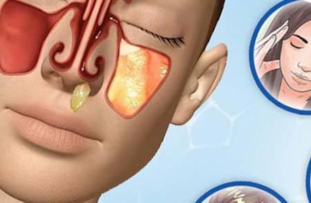 Синусит при беременности: причины, симптомы и признаки, методы диагностики и лечения, профилактика, возможные осложнения
