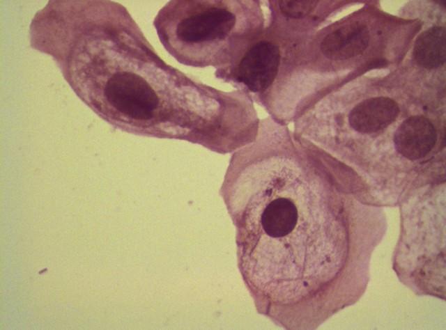 Метаплазия шейки матки: причины, проявление, прогноз