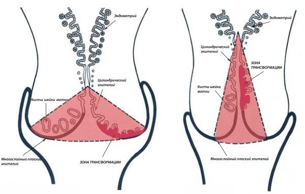 Пластика шейки матки: показания, техника проведения, осложнения