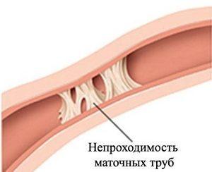 Жидкость в маточных трубах: откуда берется и на что влияет?