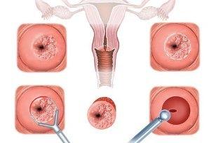 Таблетки от эрозии шейки матки: показания, популярные препараты